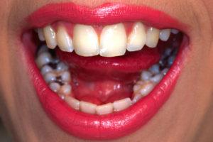 Plombierte Zähne einer Frau